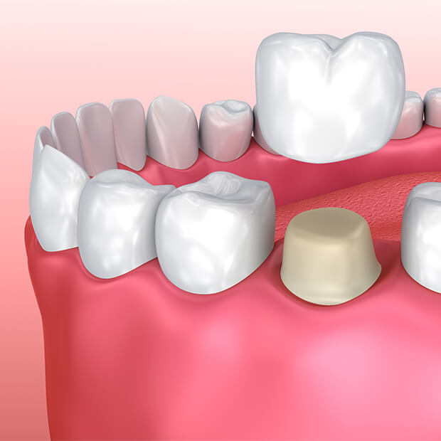 CEREC® Crowns
