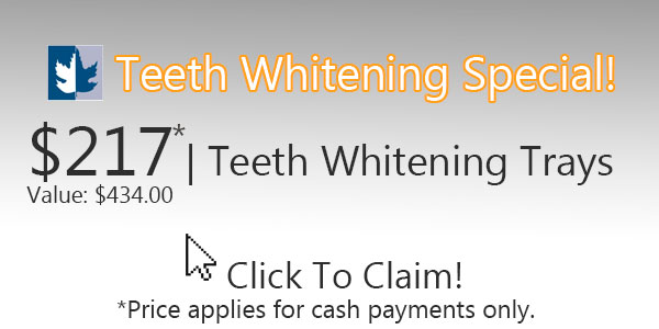 Maplewood-Dental---Teeth-Whitening-Special-v.2