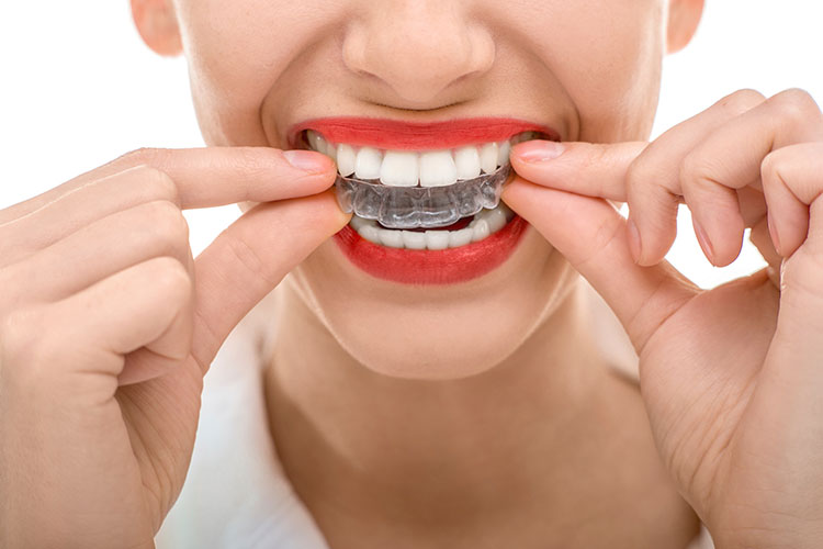 St-Paul-Invisalign-clear-aligners